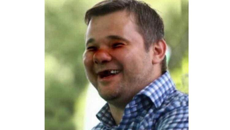 Глава администрации Зеленского опубликовал фото без зубов