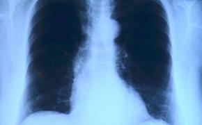 Поражения легких выявили у людей, бессимптомно переболевших коронавирусом нового типа