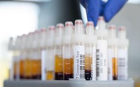 Росстат: в мае коронавирус унес жизни 5 644 россиян