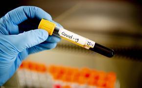 В России за сутки выявили 7 867 случаев заражения коронавирусом