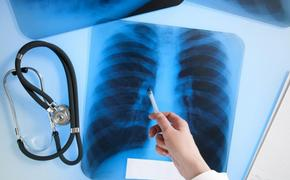 Профилактика туберкулеза: рекомендации главврача краевого тубдиспансера