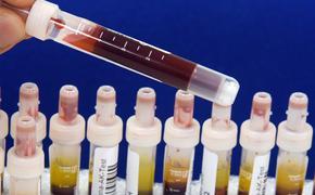 За сутки в России 471 человек скончался от COVID-19