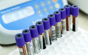 На Украине за сутки выявили более 8 700 случаев заражения COVID-19