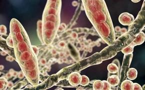 Учёные зафиксировали рост микозов в ковидариях