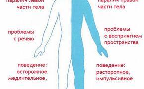 Диагностика инсульта стала для москвичей бесплатной